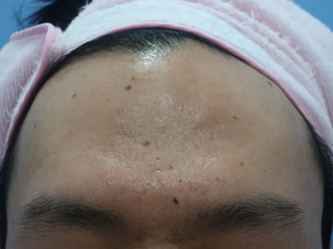 Mole Removal in Seoul at MeClinic - JansonTow